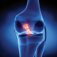 ACL injury treatment