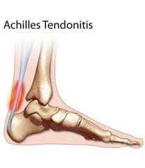Achilles Tendonitis Prevention