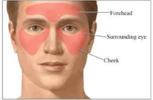 Sinus Pain treatment