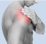 shoulder_impingement